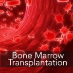 Bone Marrow Transplant