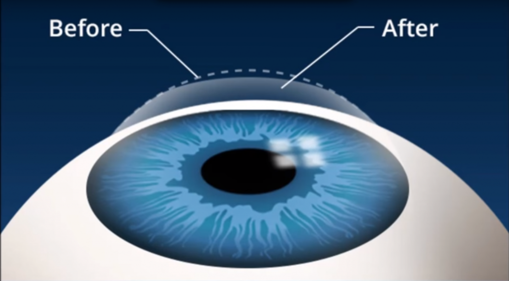 Effective Exercise To Improve Eye Vision And Maintain